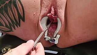 CrazyFetishCouple – Hot piss session on the gyno chair